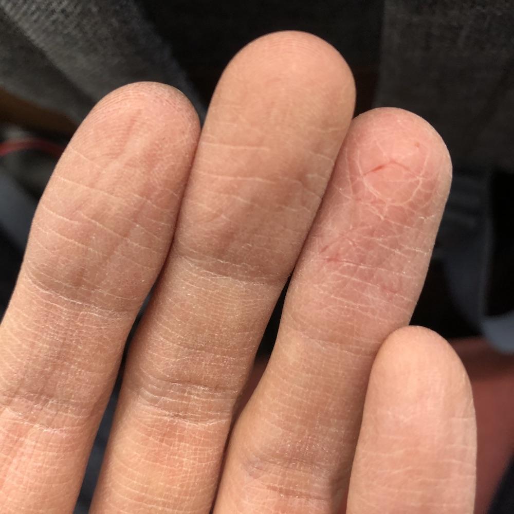 alt 被去脂的手指